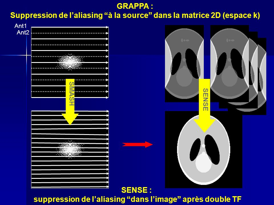 SMASH GRAPPA : Suppression de laliasing à la source dans la matrice 2D (espace k) SENSE : suppression de laliasing dans limage après double TF Ant1 An