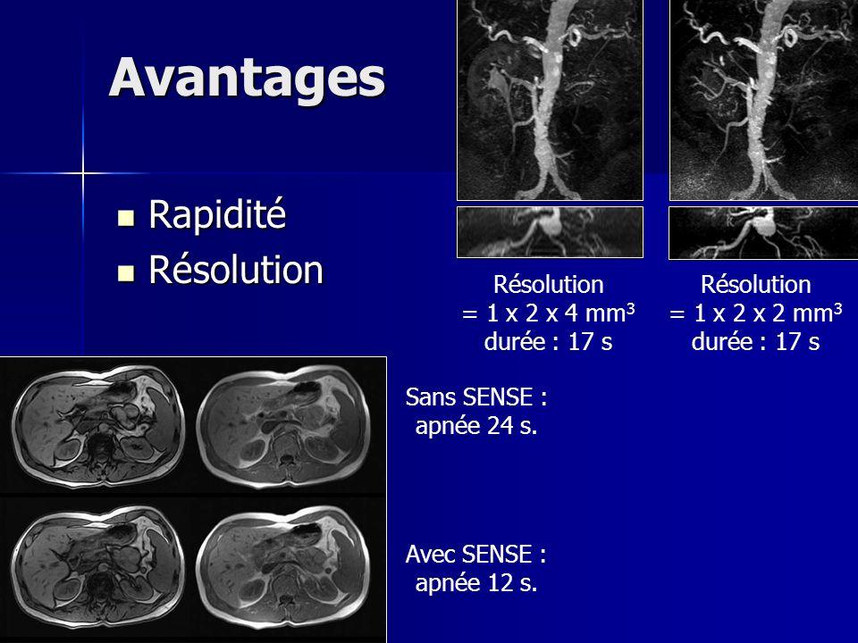 Avantages Rapidité Rapidité Résolution Résolution Résolution = 1 x 2 x 4 mm 3 durée : 17 s Résolution = 1 x 2 x 2 mm 3 durée : 17 s Sans SENSE : apnée 24 s.