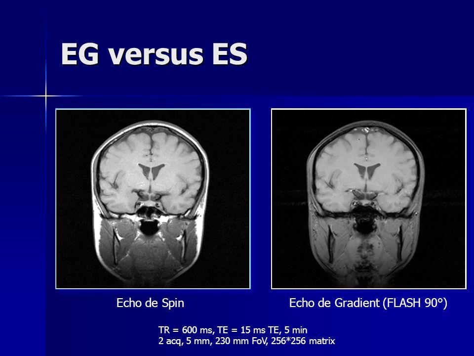 Signal en écho de gradient signal FID signal SE FID + signal SE + échos stimulés échos stimulés Une combinaison de 3 pulses RF résulte en des échos stimulés...