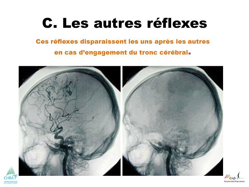 C. Les autres réflexes Ces réflexes disparaissent les uns après les autres en cas dengagement du tronc cérébral.