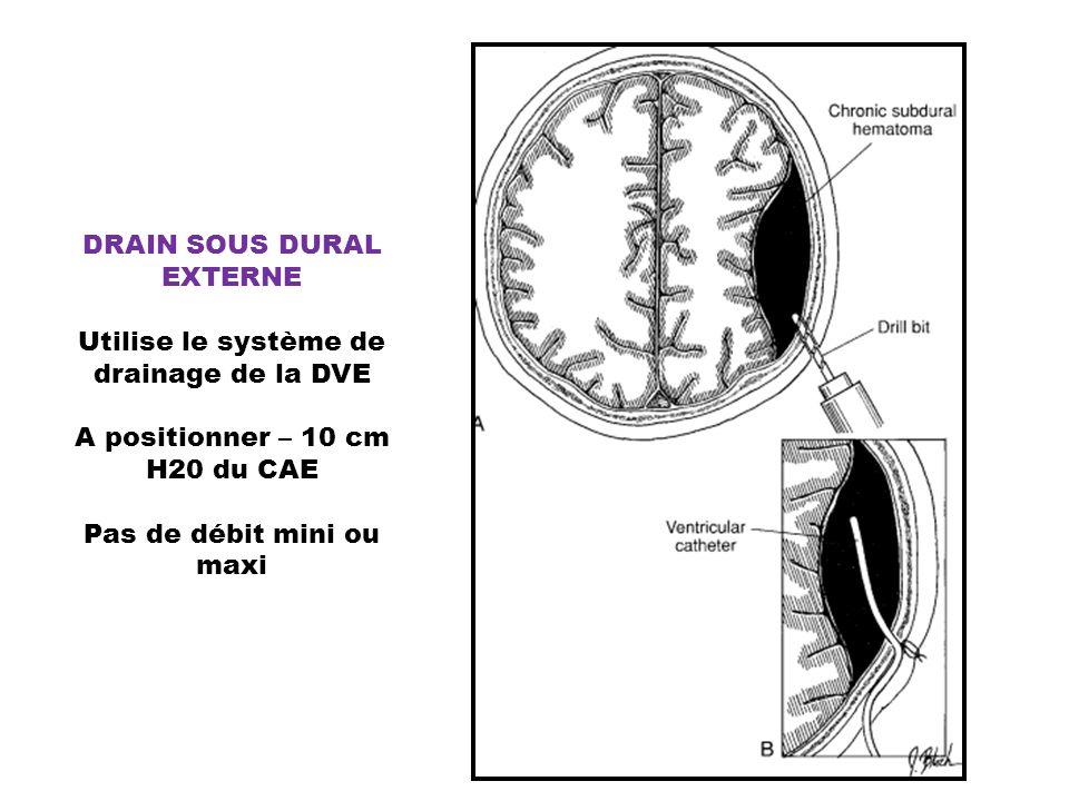 DRAIN SOUS DURAL EXTERNE Utilise le système de drainage de la DVE A positionner – 10 cm H20 du CAE Pas de débit mini ou maxi