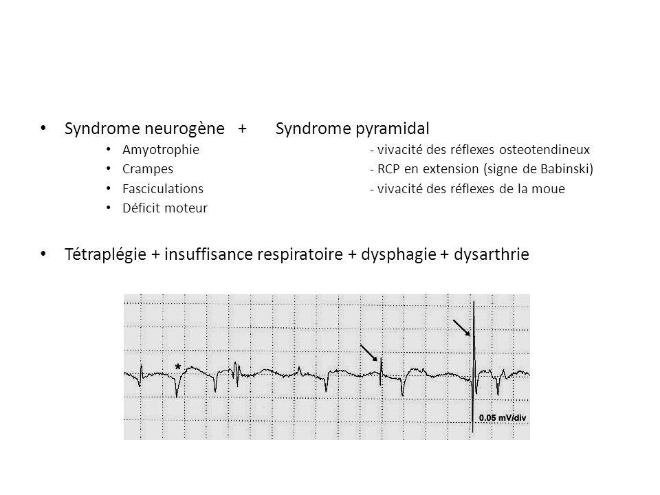 Syndrome neurogène+ Syndrome pyramidal Amyotrophie- vivacité des réflexes osteotendineux Crampes- RCP en extension (signe de Babinski) Fasciculations- vivacité des réflexes de la moue Déficit moteur Tétraplégie + insuffisance respiratoire + dysphagie + dysarthrie