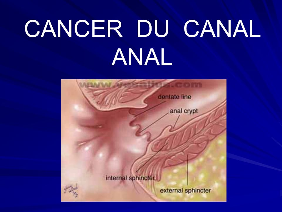 CANCER DU CANAL ANAL