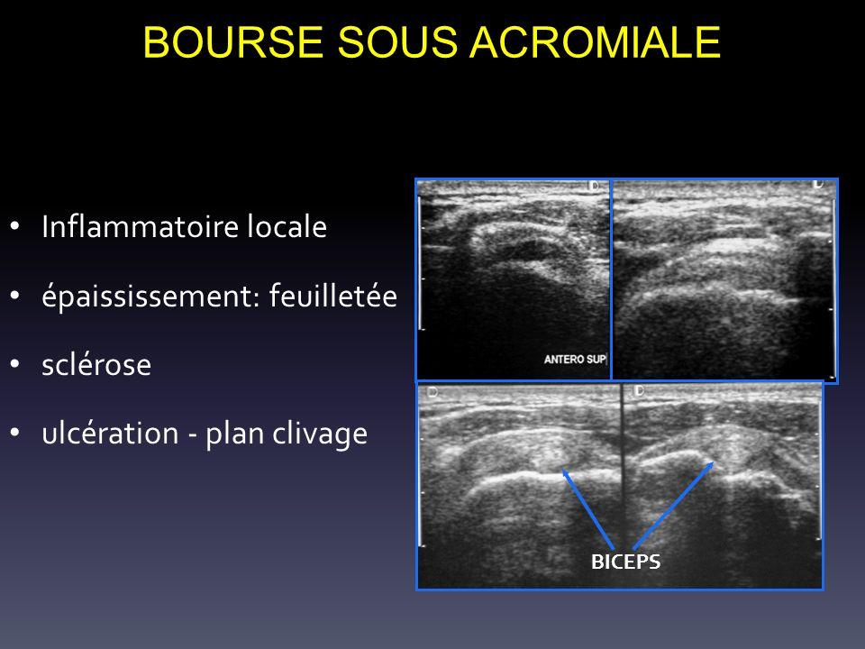 BOURSE SOUS ACROMIALE Inflammatoire locale épaississement: feuilletée sclérose ulcération - plan clivage BICEPS