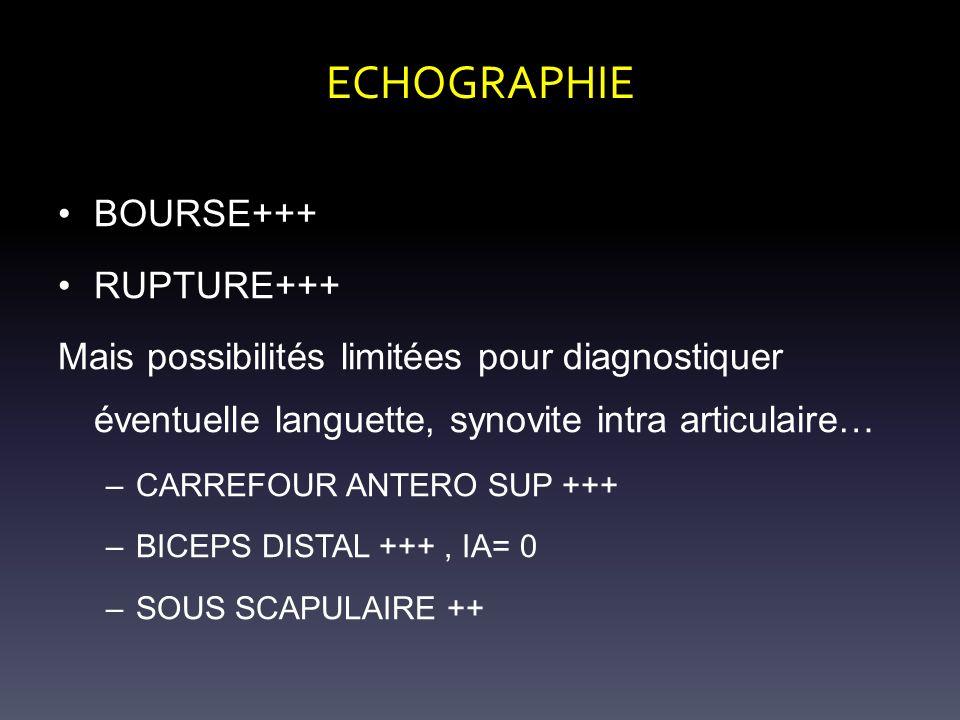 ECHOGRAPHIE BOURSE+++ RUPTURE+++ Mais possibilités limitées pour diagnostiquer éventuelle languette, synovite intra articulaire… –CARREFOUR ANTERO SUP