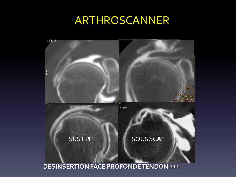ARTHROSCANNER DESINSERTION FACE PROFONDE TENDON +++ DESINSERTION FACE PROFONDE TENDON +++ SUS EPISOUS SCAP