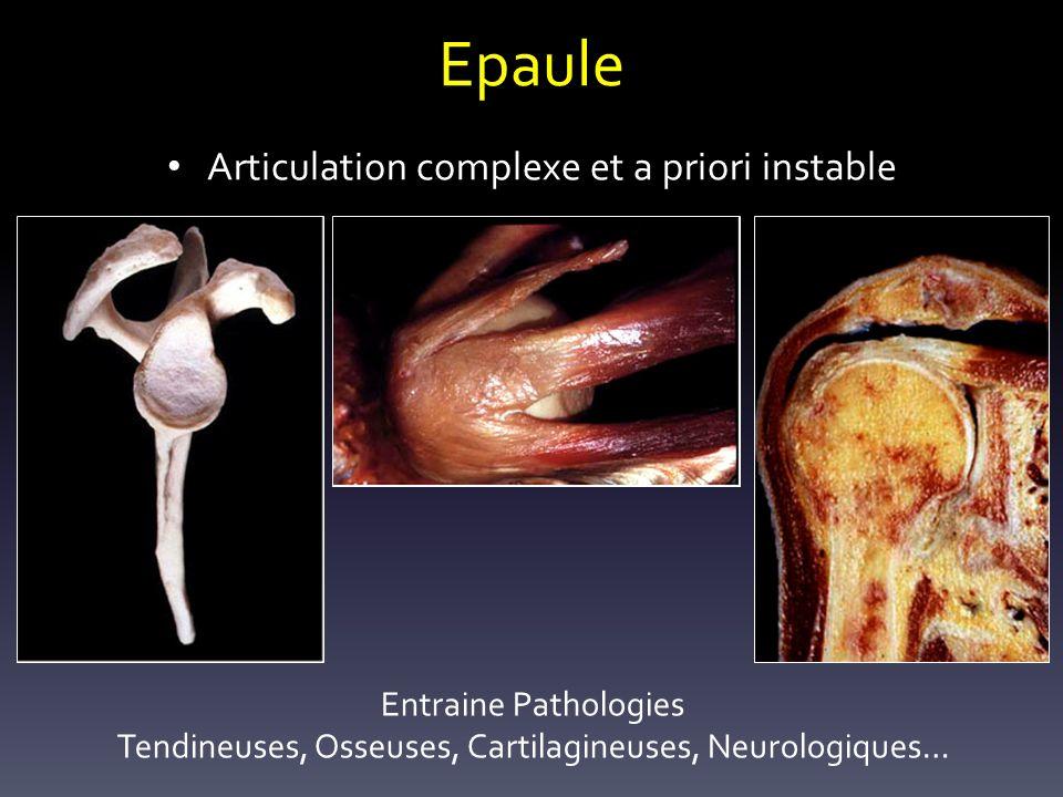 Epaule Articulation complexe et a priori instable Entraine Pathologies Tendineuses, Osseuses, Cartilagineuses, Neurologiques…