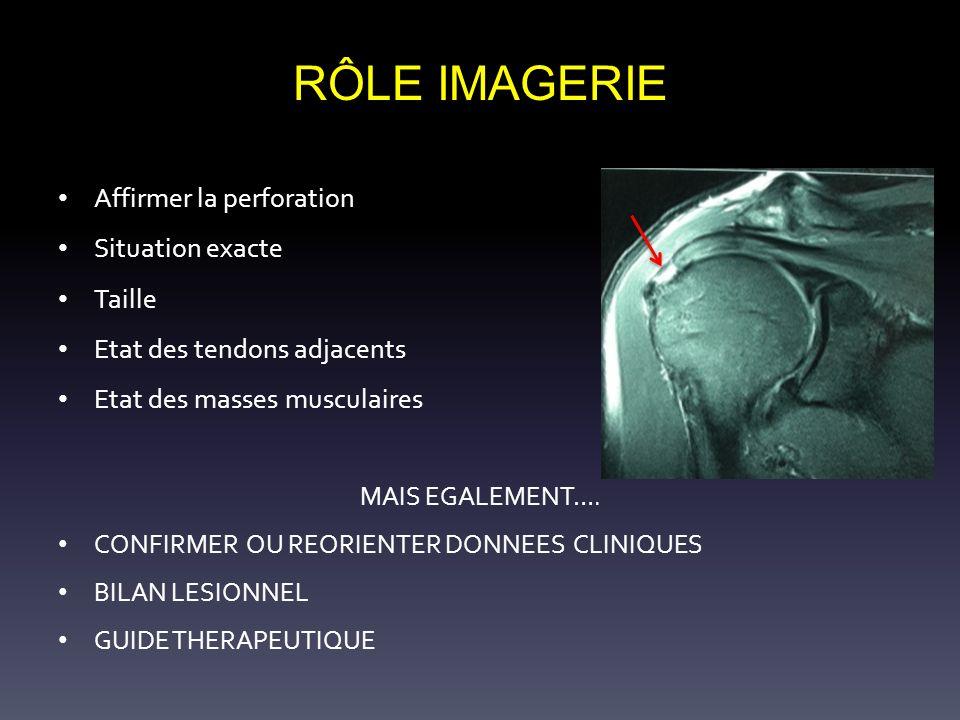 RÔLE IMAGERIE Affirmer la perforation Situation exacte Taille Etat des tendons adjacents Etat des masses musculaires MAIS EGALEMENT…. CONFIRMER OU REO