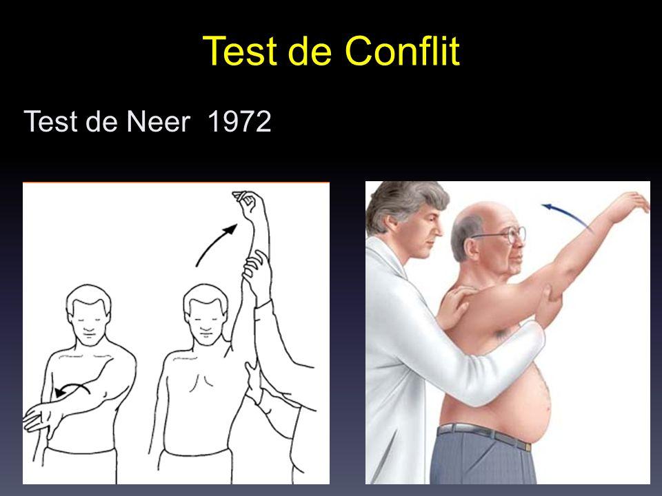 Test de Conflit Test de Neer 1972