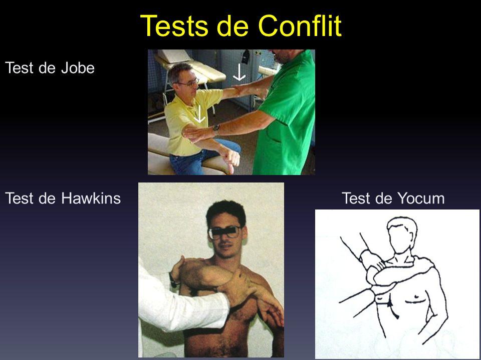 Tests de Conflit Test de Jobe Test de Hawkins Test de Yocum