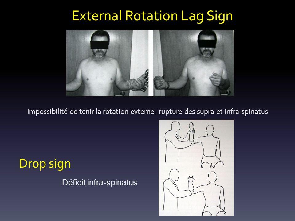 External Rotation Lag Sign Impossibilité de tenir la rotation externe: rupture des supra et infra-spinatus Drop sign Déficit infra-spinatus
