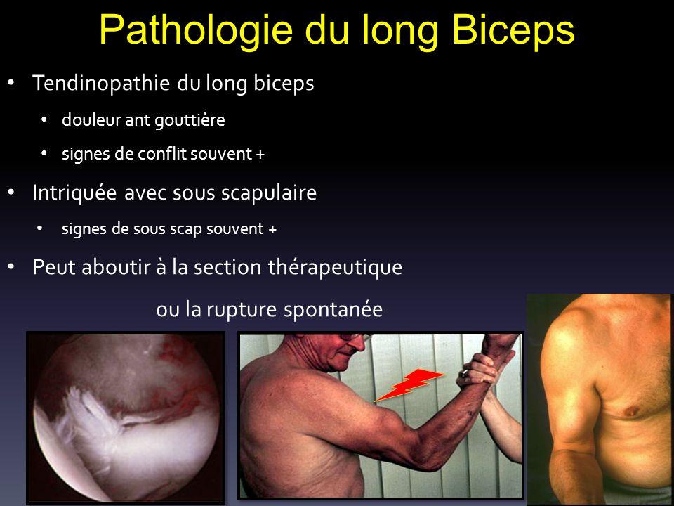 Pathologie du long Biceps Tendinopathie du long biceps douleur ant gouttière signes de conflit souvent + Intriquée avec sous scapulaire signes de sous