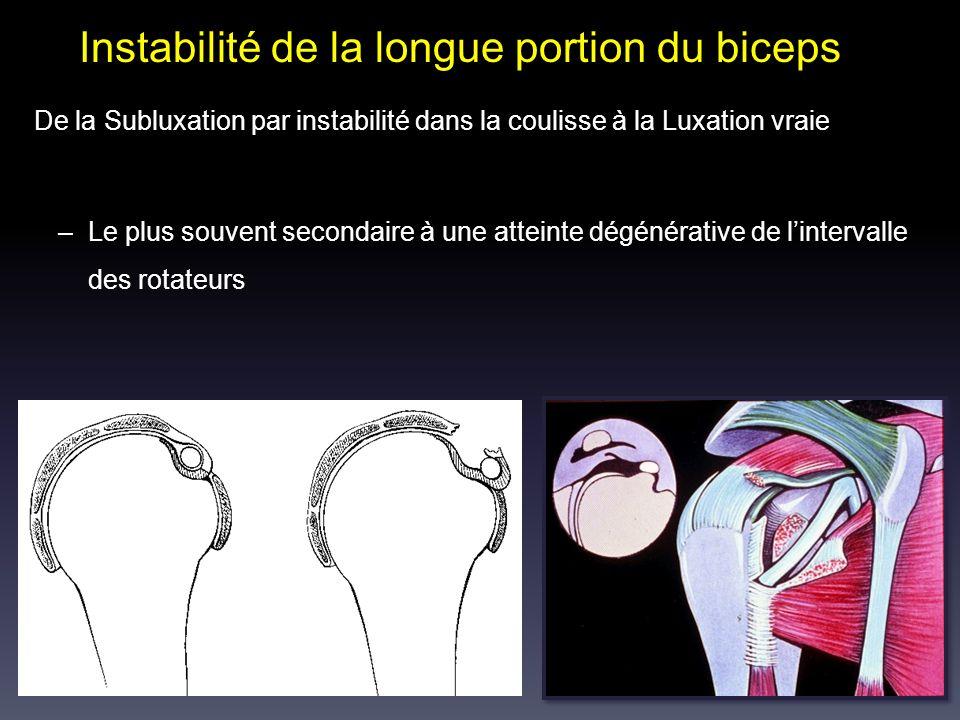Instabilité de la longue portion du biceps De la Subluxation par instabilité dans la coulisse à la Luxation vraie –Le plus souvent secondaire à une at