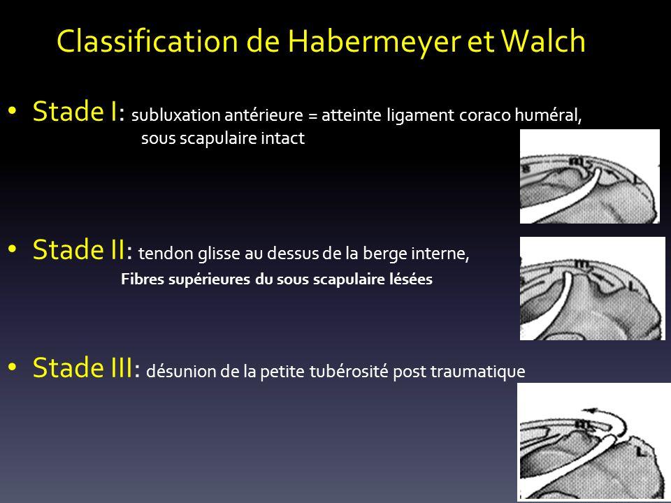 Classification de Habermeyer et Walch Stade I: subluxation antérieure = atteinte ligament coraco huméral, sous scapulaire intact Stade II: tendon glisse au dessus de la berge interne, Fibres supérieures du sous scapulaire lésées Stade III: désunion de la petite tubérosité post traumatique
