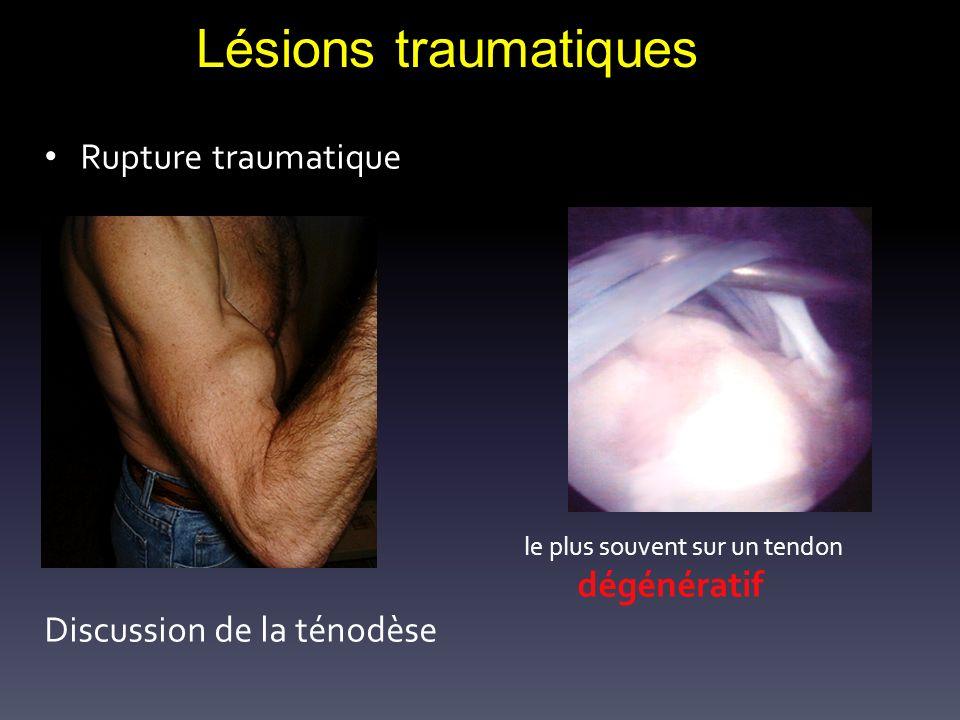 Lésions traumatiques Rupture traumatique le plus souvent sur un tendon dégénératif Discussion de la ténodèse