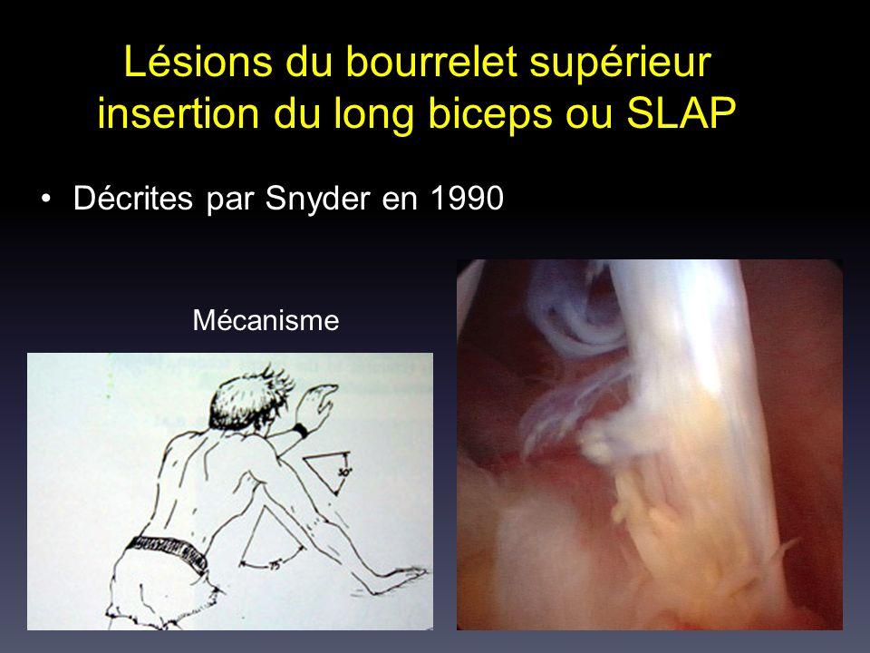 Lésions du bourrelet supérieur insertion du long biceps ou SLAP Décrites par Snyder en 1990 Mécanisme