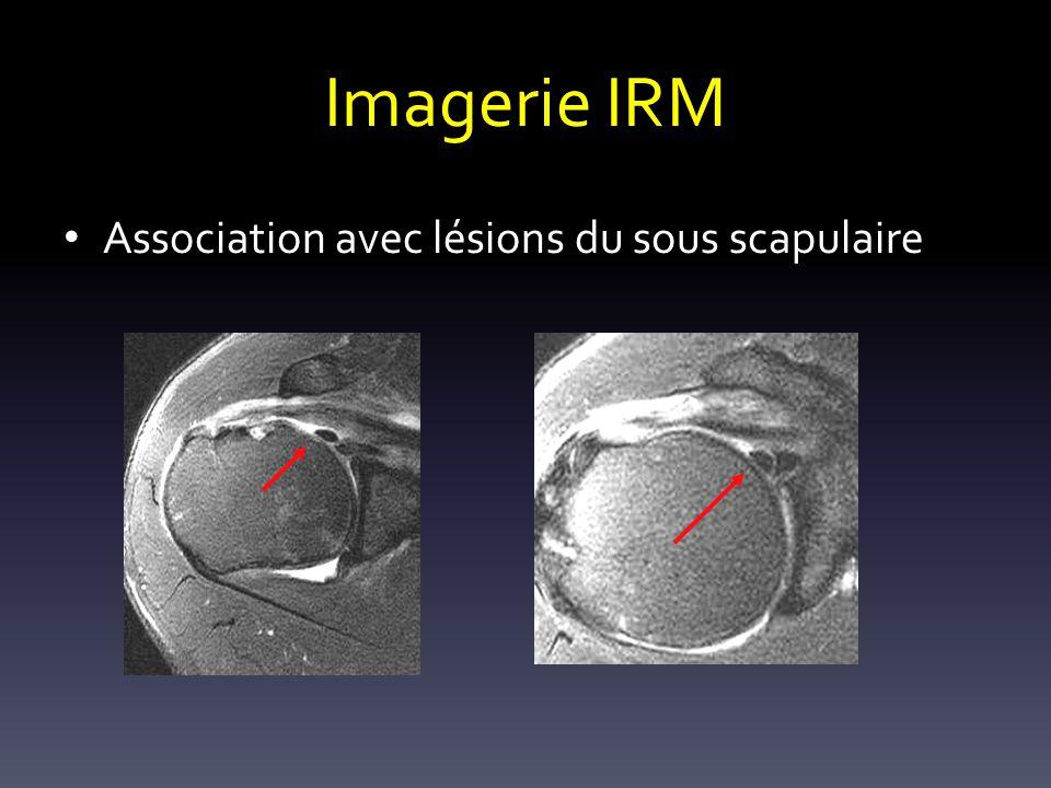 Imagerie IRM Association avec lésions du sous scapulaire