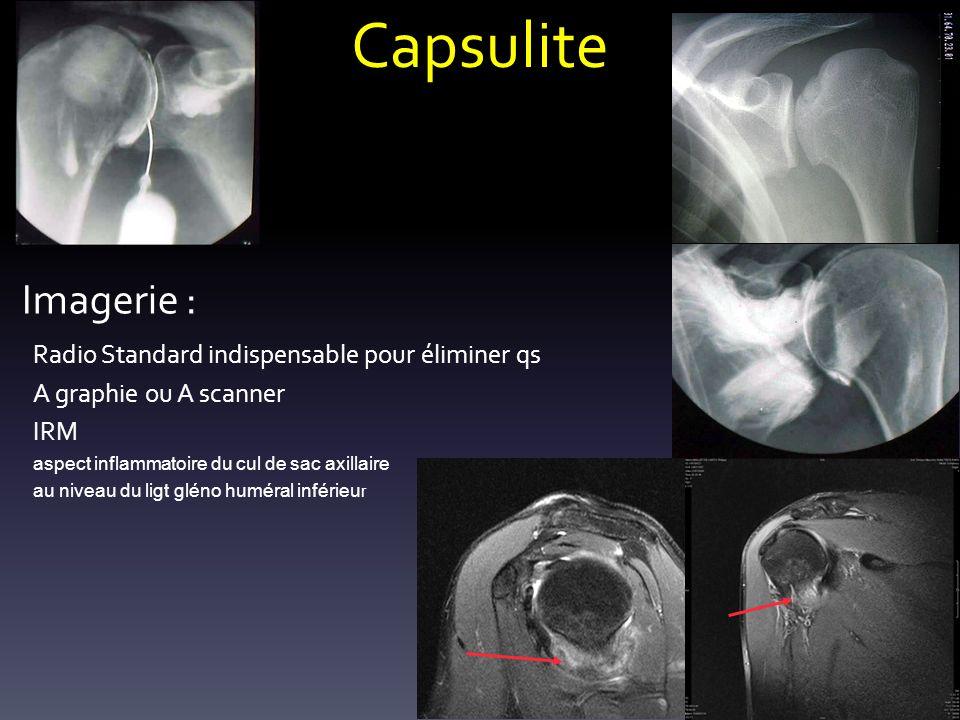 Capsulite Imagerie : Radio Standard indispensable pour éliminer qs A graphie ou A scanner IRM aspect inflammatoire du cul de sac axillaire au niveau d