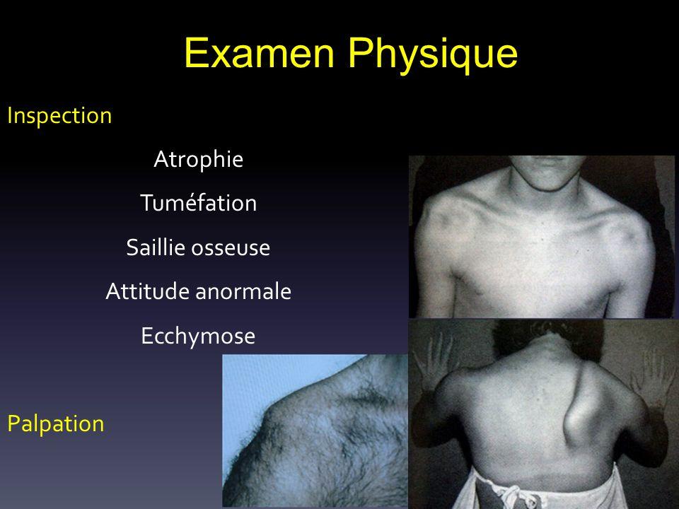 Examen Physique Inspection Atrophie Tuméfation Saillie osseuse Attitude anormale Ecchymose Palpation