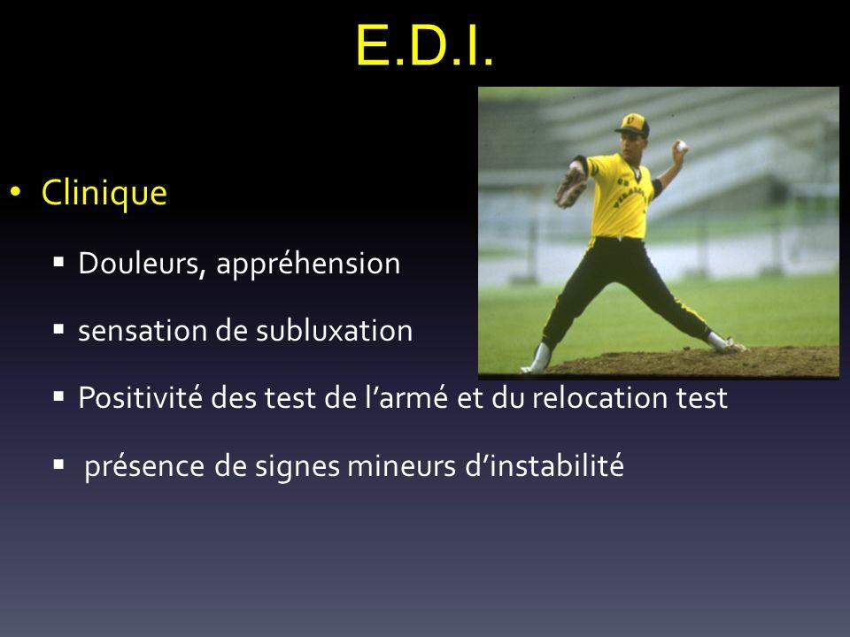 E.D.I. Clinique Douleurs, appréhension sensation de subluxation Positivité des test de larmé et du relocation test présence de signes mineurs dinstabi