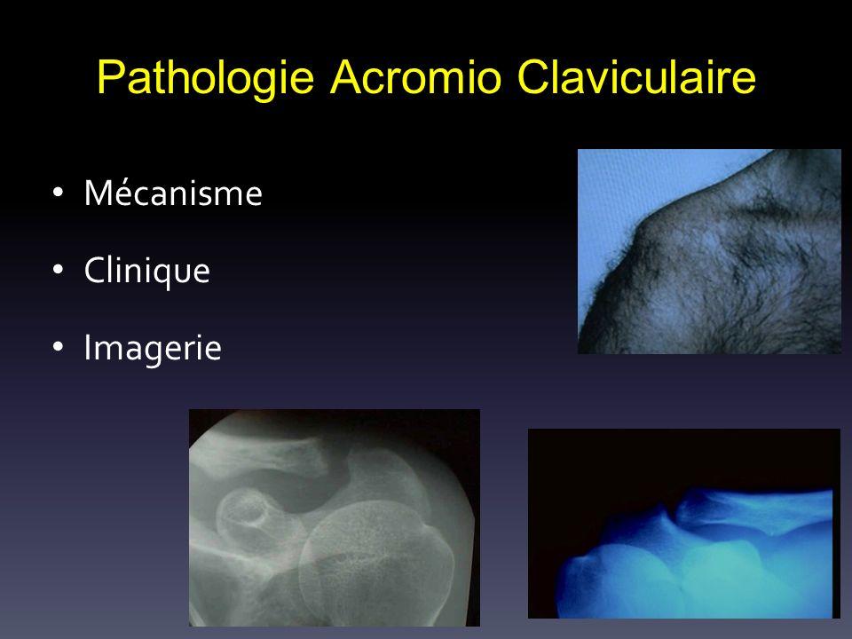 Pathologie Acromio Claviculaire Mécanisme Clinique Imagerie