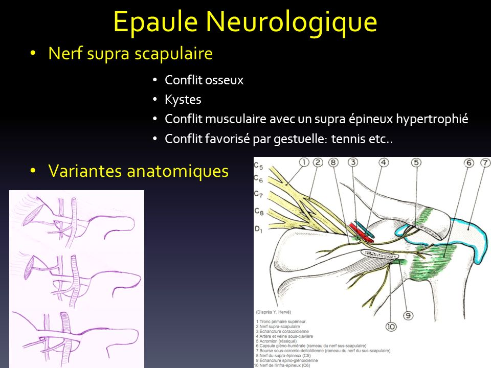 Epaule Neurologique Nerf supra scapulaire Conflit osseux Kystes Conflit musculaire avec un supra épineux hypertrophié Conflit favorisé par gestuelle: