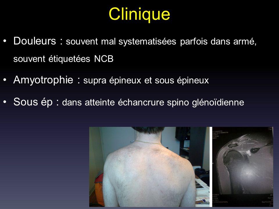 Clinique Douleurs : souvent mal systematisées parfois dans armé, souvent étiquetées NCB Amyotrophie : supra épineux et sous épineux Sous ép : dans att