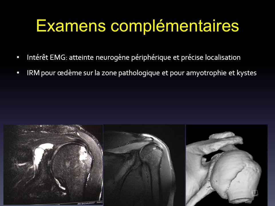 Examens complémentaires Intérêt EMG: atteinte neurogène périphérique et précise localisation IRM pour œdème sur la zone pathologique et pour amyotroph