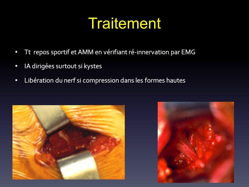 Traitement Tt repos sportif et AMM en vérifiant ré-innervation par EMG IA dirigées surtout si kystes Libération du nerf si compression dans les formes