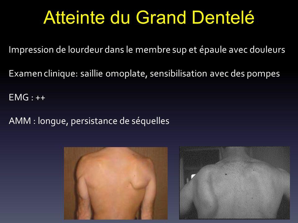Atteinte du Grand Dentelé Impression de lourdeur dans le membre sup et épaule avec douleurs Examen clinique: saillie omoplate, sensibilisation avec de