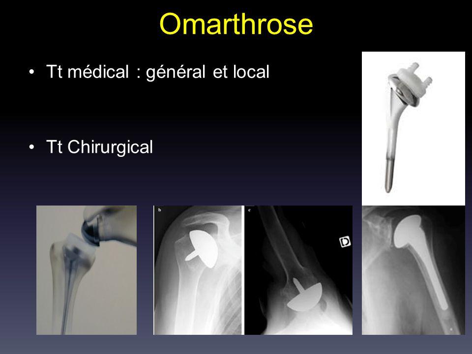 Omarthrose Tt médical : général et local Tt Chirurgical
