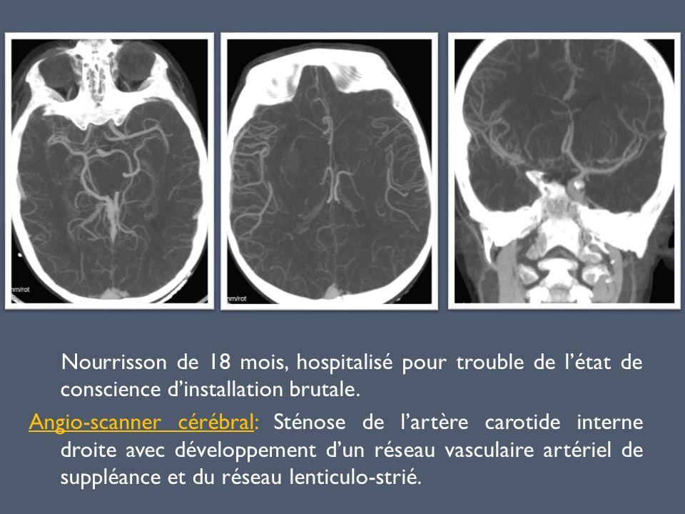 Nourrisson de 18 mois, hospitalisé pour trouble de létat de conscience dinstallation brutale. Angio-scanner cérébral: Sténose de lartère carotide inte