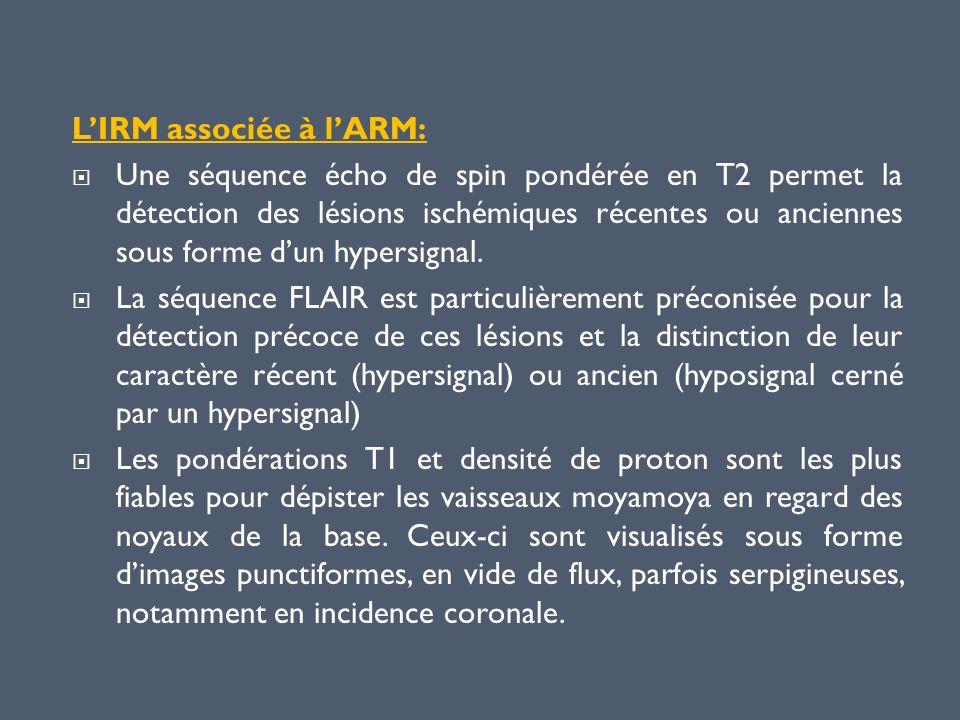 LIRM associée à lARM: Une séquence écho de spin pondérée en T2 permet la détection des lésions ischémiques récentes ou anciennes sous forme dun hypers