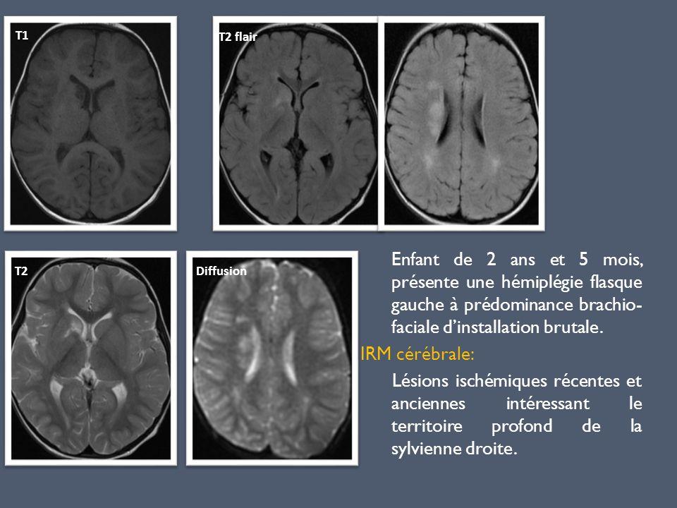 Enfant de 2 ans et 5 mois, présente une hémiplégie flasque gauche à prédominance brachio- faciale dinstallation brutale. IRM cérébrale: Lésions ischém