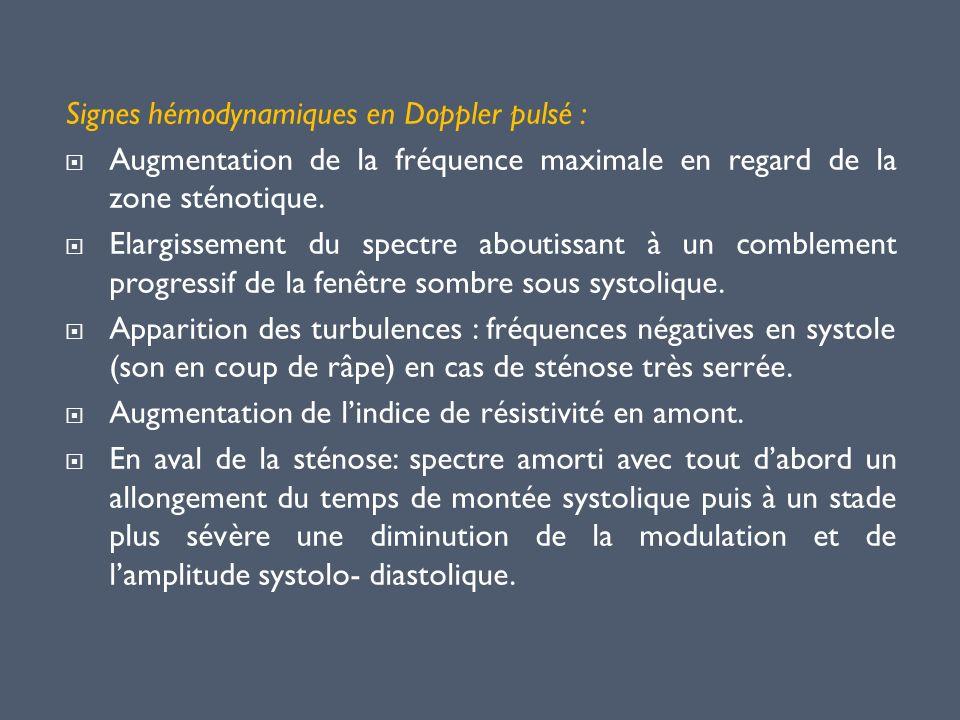 Signes hémodynamiques en Doppler pulsé : Augmentation de la fréquence maximale en regard de la zone sténotique. Elargissement du spectre aboutissant à