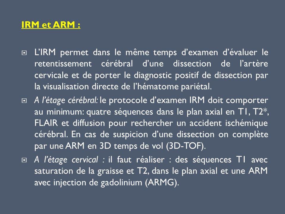 IRM et ARM : LIRM permet dans le même temps dexamen dévaluer le retentissement cérébral dune dissection de lartère cervicale et de porter le diagnosti