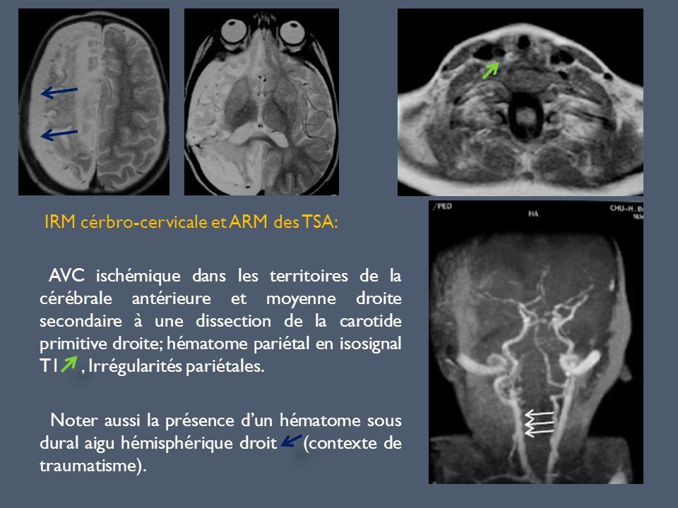 IRM cérbro-cervicale et ARM des TSA: AVC ischémique dans les territoires de la cérébrale antérieure et moyenne droite secondaire à une dissection de l