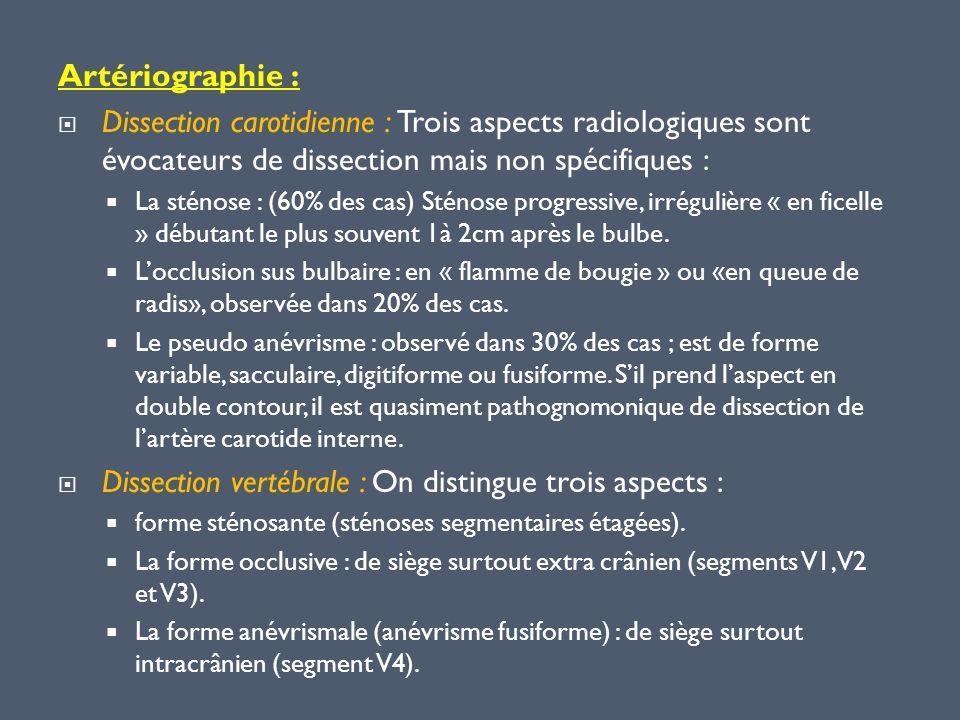 Artériographie : Dissection carotidienne : Trois aspects radiologiques sont évocateurs de dissection mais non spécifiques : La sténose : (60% des cas)