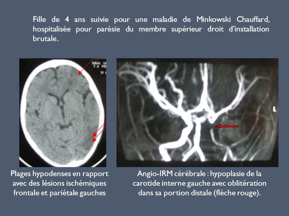 Fille de 4 ans suivie pour une maladie de Minkowski Chauffard, hospitalisée pour parésie du membre supérieur droit dinstallation brutale. Plages hypod
