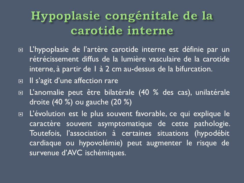 Lhypoplasie de lartère carotide interne est définie par un rétrécissement diffus de la lumière vasculaire de la carotide interne, à partir de 1 à 2 cm