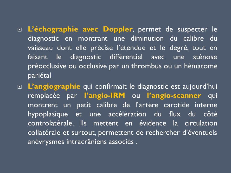 Léchographie avec Doppler, permet de suspecter le diagnostic en montrant une diminution du calibre du vaisseau dont elle précise létendue et le degré,