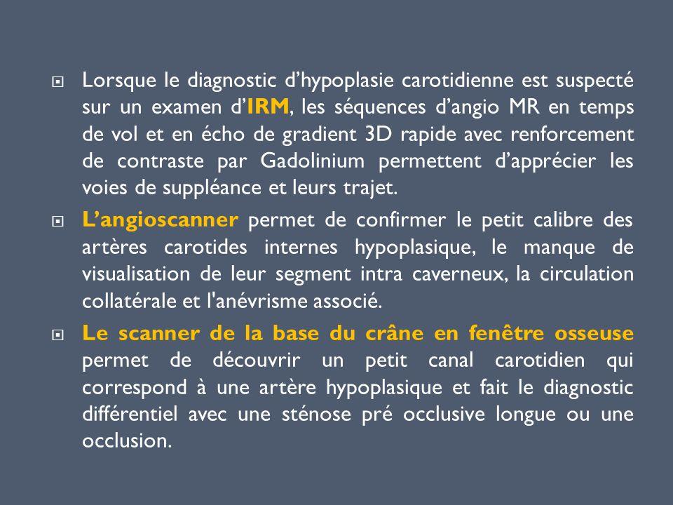 Lorsque le diagnostic dhypoplasie carotidienne est suspecté sur un examen dIRM, les séquences dangio MR en temps de vol et en écho de gradient 3D rapi