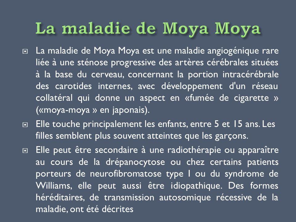 La maladie de Moya Moya est une maladie angiogénique rare liée à une sténose progressive des artères cérébrales situées à la base du cerveau, concerna