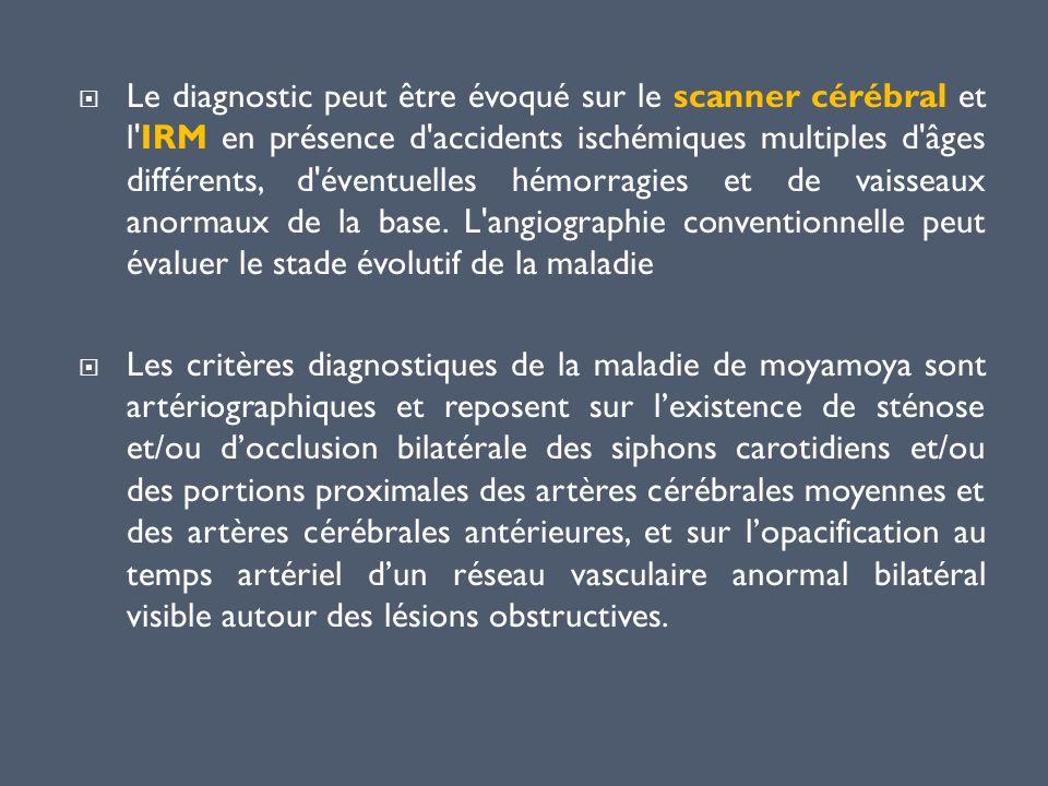 Le diagnostic peut être évoqué sur le scanner cérébral et l'IRM en présence d'accidents ischémiques multiples d'âges différents, d'éventuelles hémorra