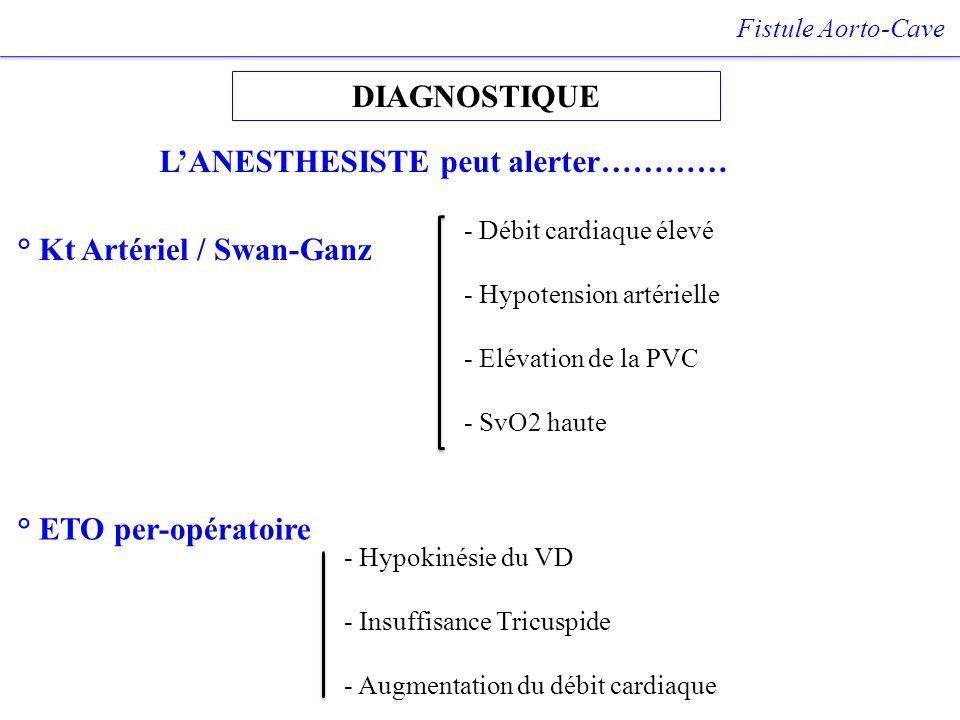 DIAGNOSTIQUE Fistule Aorto-Cave LANESTHESISTE peut alerter………… ° Kt Artériel / Swan-Ganz ° ETO per-opératoire - Hypokinésie du VD - Insuffisance Tricu