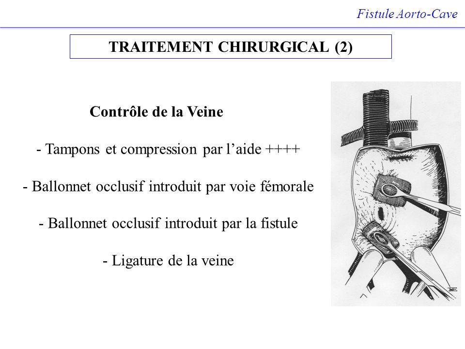 TRAITEMENT CHIRURGICAL (2) Fistule Aorto-Cave Contrôle de la Veine - Tampons et compression par laide ++++ - Ballonnet occlusif introduit par voie fém