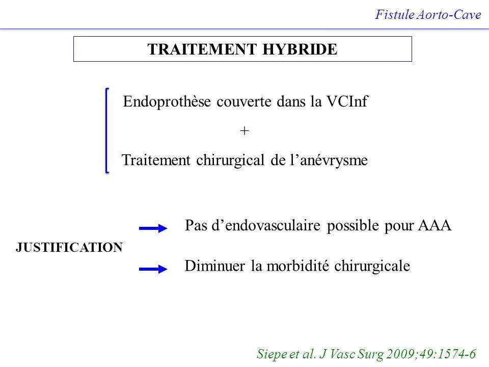 TRAITEMENT HYBRIDE Fistule Aorto-Cave Siepe et al. J Vasc Surg 2009;49:1574-6 Endoprothèse couverte dans la VCInf + Traitement chirurgical de lanévrys