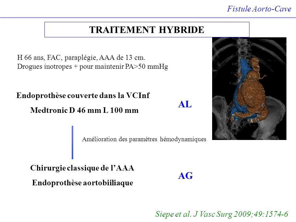 TRAITEMENT HYBRIDE Fistule Aorto-Cave Siepe et al. J Vasc Surg 2009;49:1574-6 H 66 ans, FAC, paraplégie, AAA de 13 cm. Drogues inotropes + pour mainte