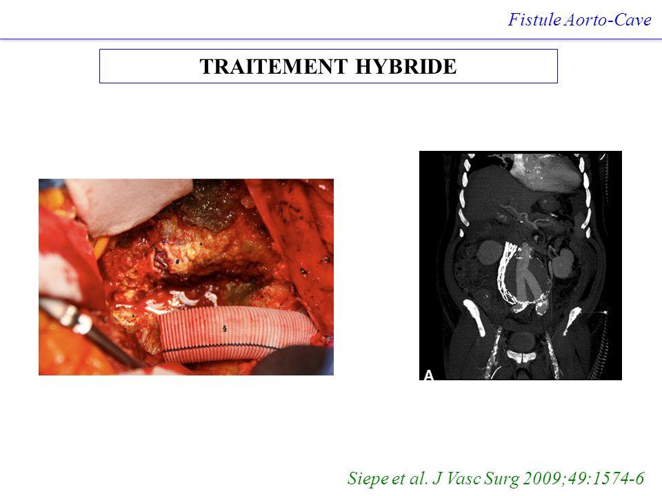 TRAITEMENT HYBRIDE Fistule Aorto-Cave Siepe et al. J Vasc Surg 2009;49:1574-6