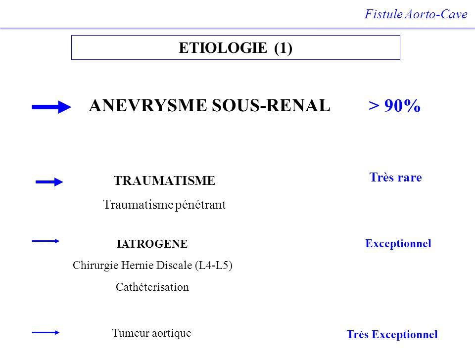 ETIOLOGIE (1) Fistule Aorto-Cave ANEVRYSME SOUS-RENAL TRAUMATISME Traumatisme pénétrant IATROGENE Chirurgie Hernie Discale (L4-L5) Cathéterisation > 9